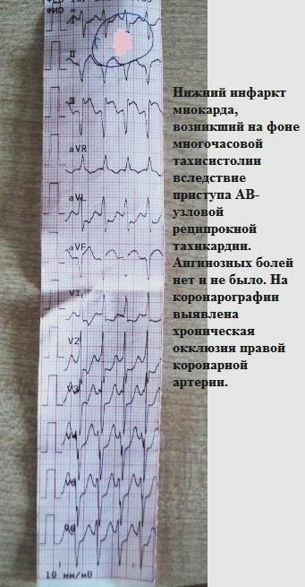 Инфаркт миокарда на фоне тахикардии