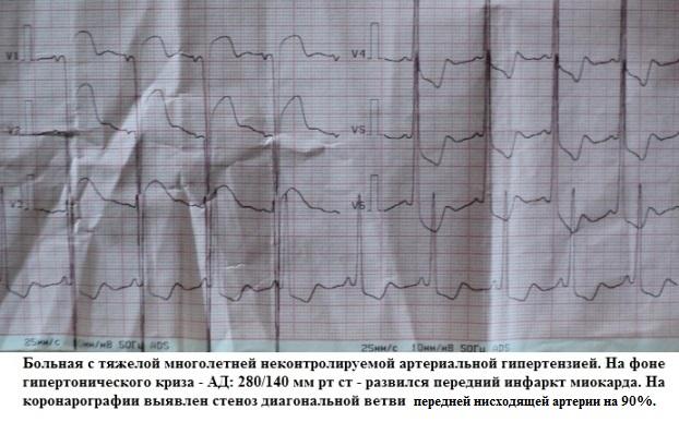 Вторичный инфаркт миокарда