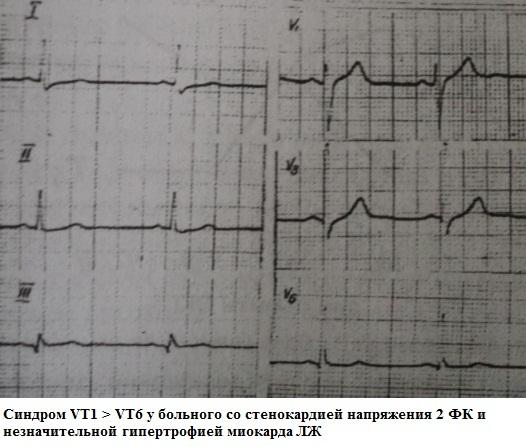 Синдром VT1 больше VT6