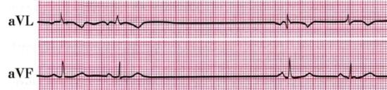 Синоатриальная блокада 2-й степени 2-го типа