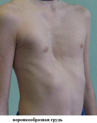 Воронкообразная грудь