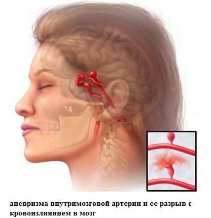 Аневризма внутримозговой артерии