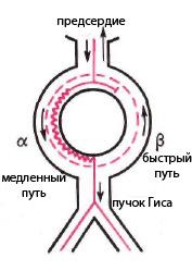 Диссоциация АВ-узла