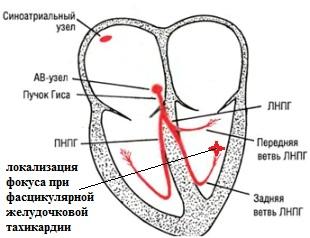 Фасцикулярная желудочковая тахикардия и РЧА