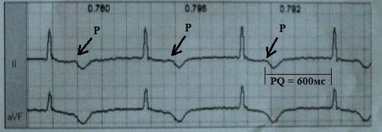Псевдо-синдром кардиостимулятора