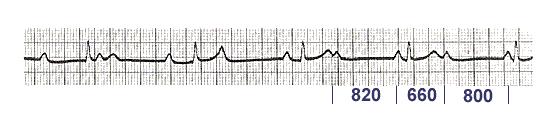 Вентрикулофазная синусовая аритмия