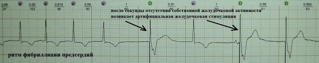 Стимуляция VVI