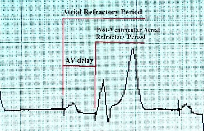 Рефрактерные периоды при кардиостимуляции