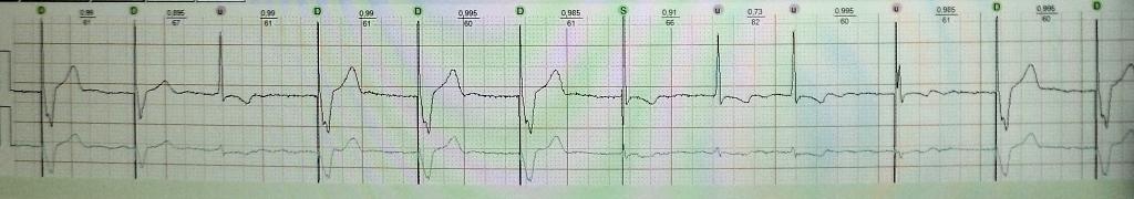 Синдром кардиостимулятора