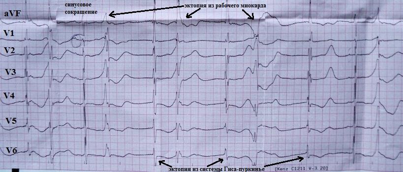Политопная эктопия на фоне удлиненного интервала Q-T