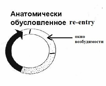 Macrore-entry