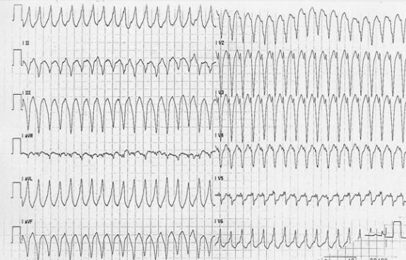 Желудочковая тахикардия с морфологией блокады ЛНПГ