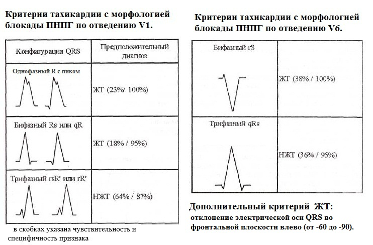 Критерии тахикардии с широкими комплексами QRS на основании отведений V1 и V6