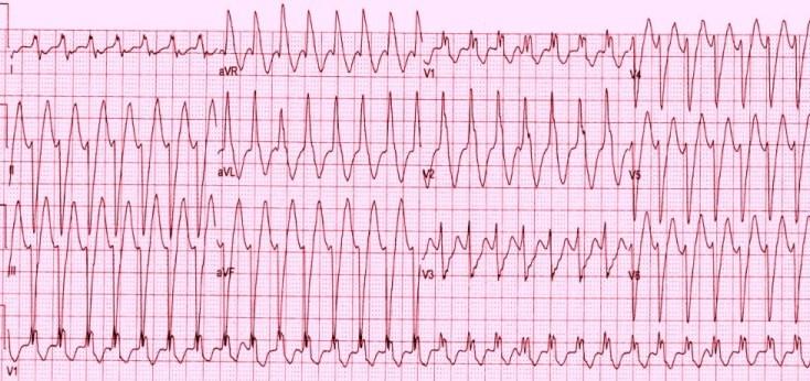 Желудочковая тахикардия с морфологией блокады ПНПГ
