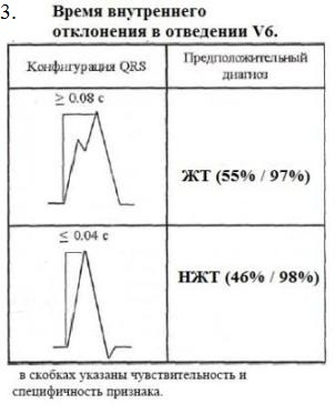 Дифференциальные признаки ЖТ и НЖТ