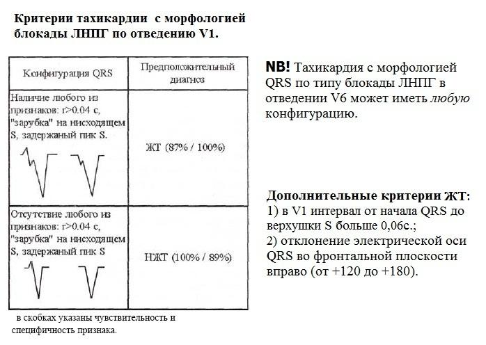 Дифференциально-диагностические критерии тахикардии с широкими комплексами QRS