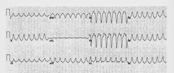 Желудочковая тахикардия из выносящего тракта правого желудочка