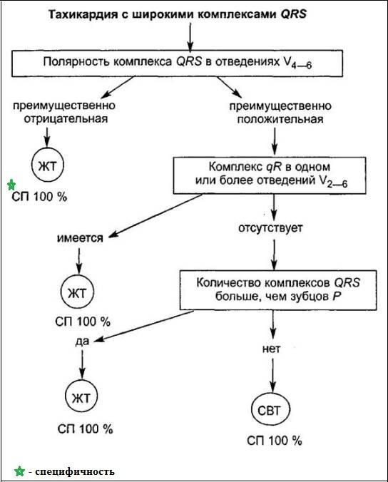Алгоритм дифференциальной диагностики желудочковой тахикардии и антидромной тахикардии
