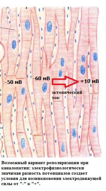 Реполяризация миокарда при патологии