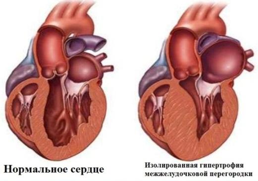 Сердце при гипертрофической кардиомиопатии