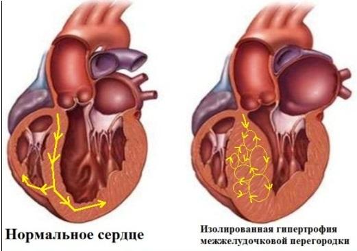 Аритмический субстрат при гипертрофической кардиомиопатии
