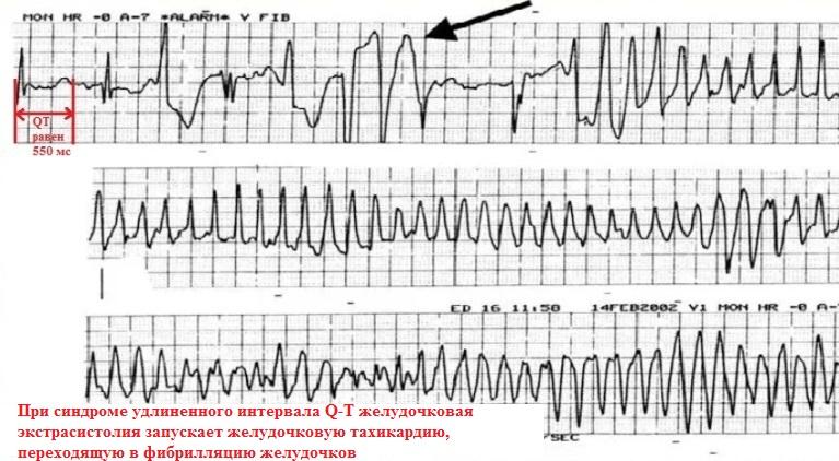 Синдром удлиненного интервала QT