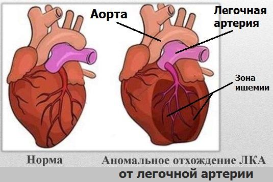 Аномальное развитие левой коронарной артерии