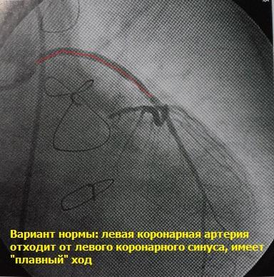 Коронарная артерия при ангиографии