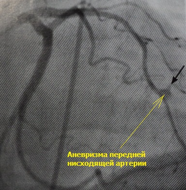 Аневризма коронарной артерии