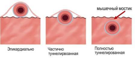 Варианты прохождения коронарных артерий