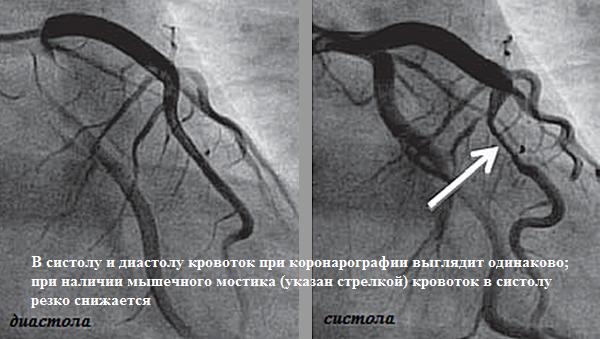 Мышечный мостик коронарной артерии