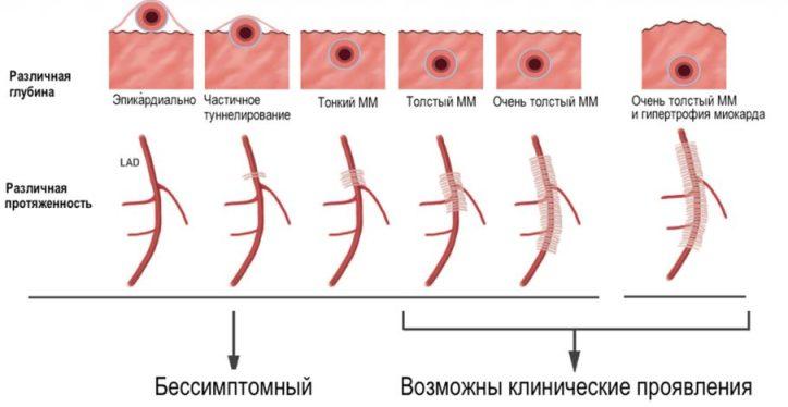 Мышечные мостики коронарных артерий - возможные варианты