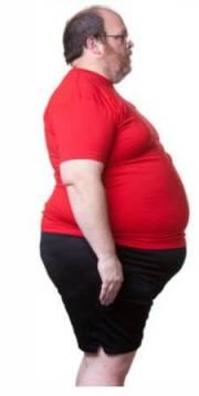 Пикническое ожирение
