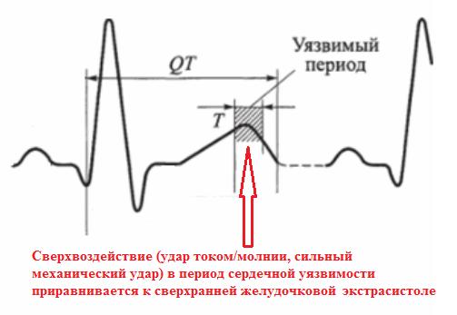 Уязвимый (вульнерабельный)период сердечного цикла