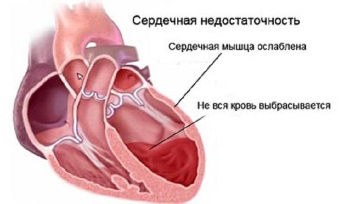 Милдронат при аритмии сердца какую роль играет