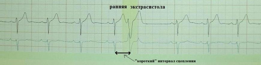 Ранняя желудочковая экстрасистолия