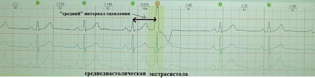 Средняя желудочковая экстрасистолия