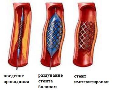 введение преператов в артерию: